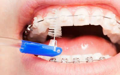 5 consejos sobre cómo limpiar la ortodoncia