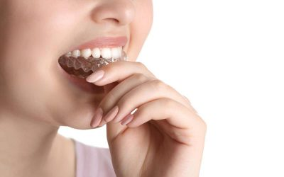 Causas y soluciones para el bruxismo (apretar o rechinar los dientes)