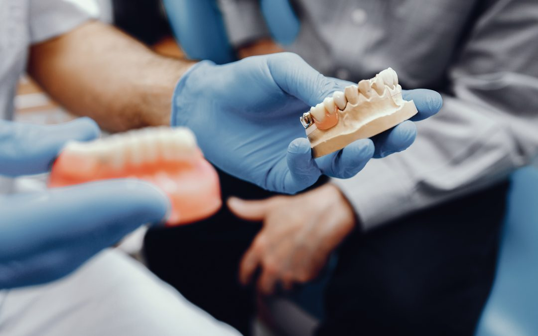 Tipos de Implantes dentales – dudas y recomendaciones.
