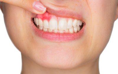 ¿Sangrado de encías al cepillarte los dientes?
