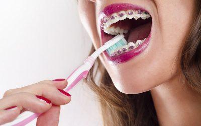 ¿Cómo cuidar tus dientes con brackets?