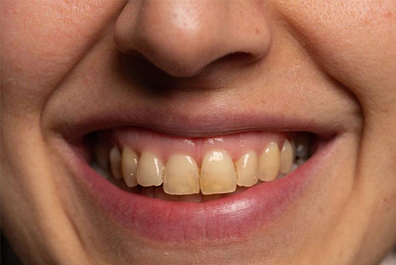 Alimentos que manchan los dientes