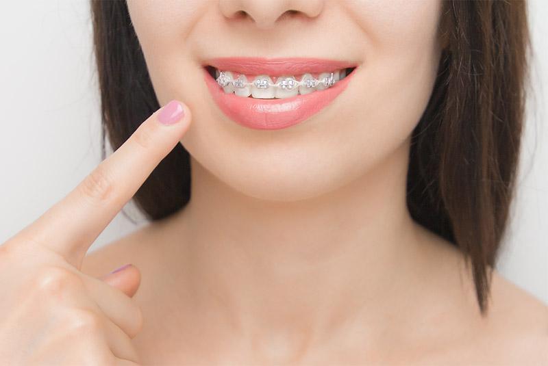 ¿Buscas una buena ortodoncia en Sevilla?