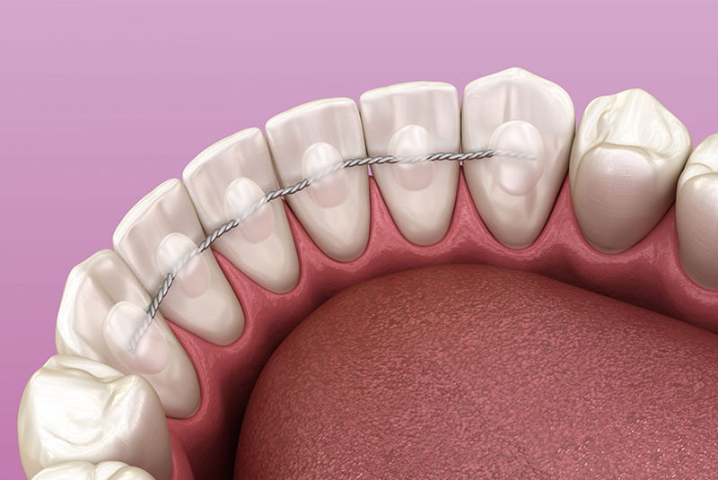 ¿Para qué sirven los retenedores dentales?