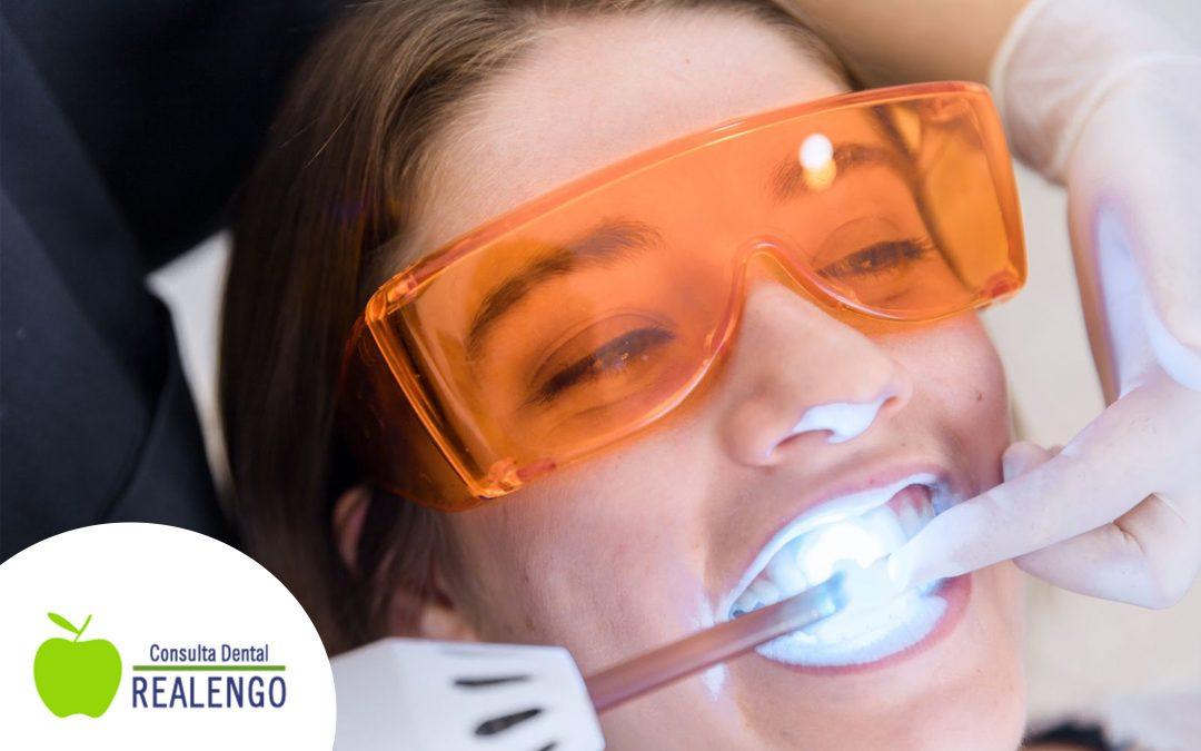¿Cuanto dura un blanqueamiento dental?