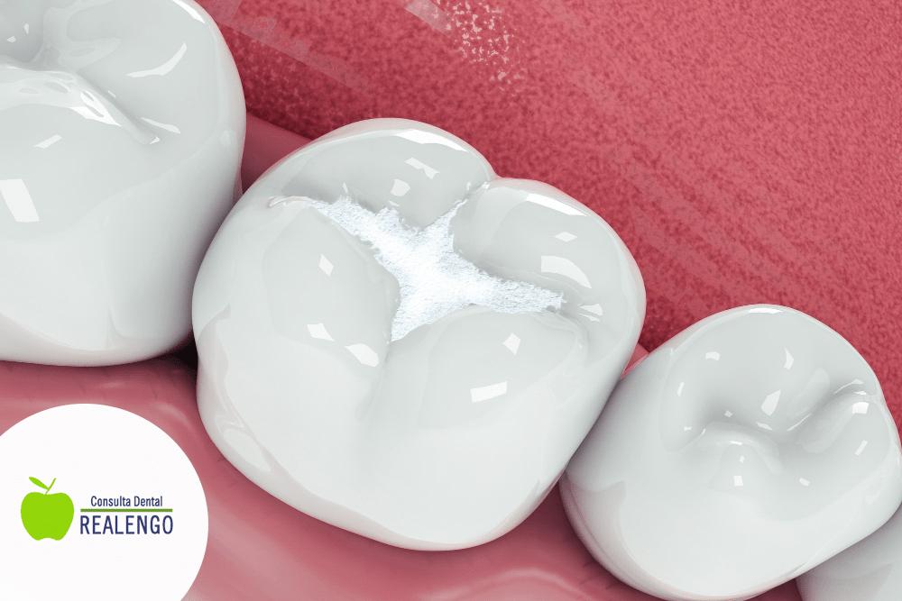 Consejos tras un empaste dental